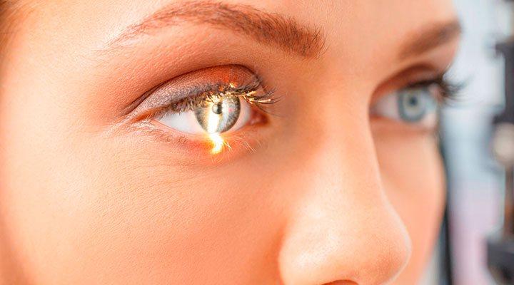 Chiếu tia laser điều trị bệnh glocom
